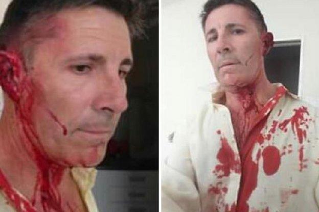 Empleado agredió con golpes de puño al director de una unidad municipal