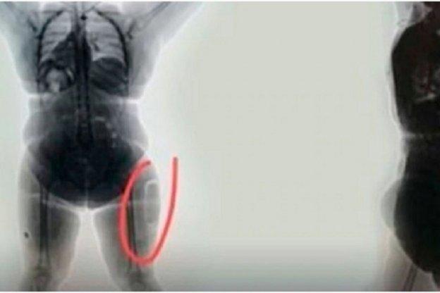 Detuvieron a una mujer que intentaba traficar cocaína implantada en sus muslos