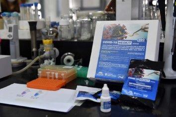 Nación recibirá en diez días el primer lote de 10 mil test de rápida detección de COVID-19