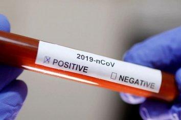 Este lunes se registraron 58 muertes y 3099 nuevos contagios