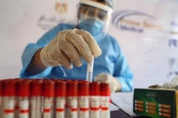Confirmaron 116 muertes y 6.653 nuevos contagios en las últimas 24 horas